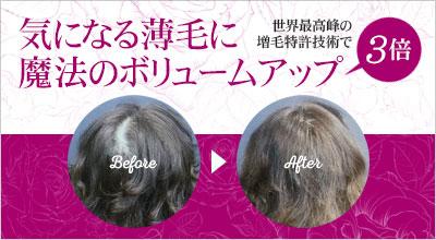 3倍のボリュームアップ効果!世界最高峰の増毛